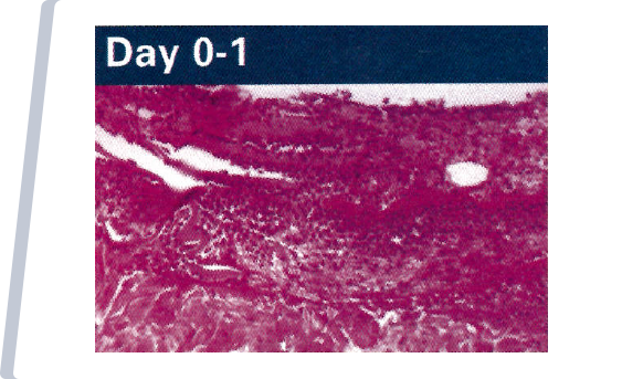 Day 0-1 NATIVE COLLAGEN APPLICATION TO WOUND.