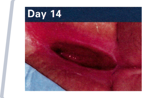 Day 14 NATIVE COLLAGEN APPLICATION TO WOUND.
