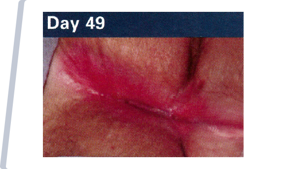 Day 49 NATIVE COLLAGEN APPLICATION TO WOUND.
